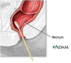 tampone uretrale clamidia
